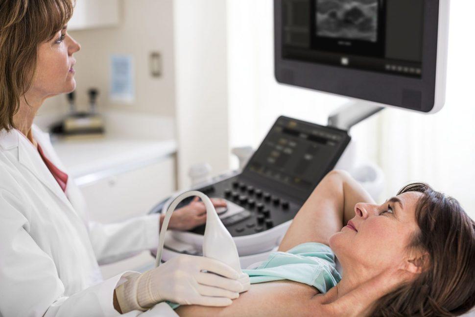 Gynekologia Philips Affiniti 70 Breast Scanning 0660