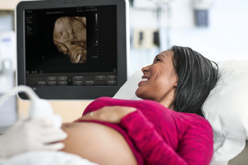 Gynekologia Philips ClearVue 650 OB Application 0649
