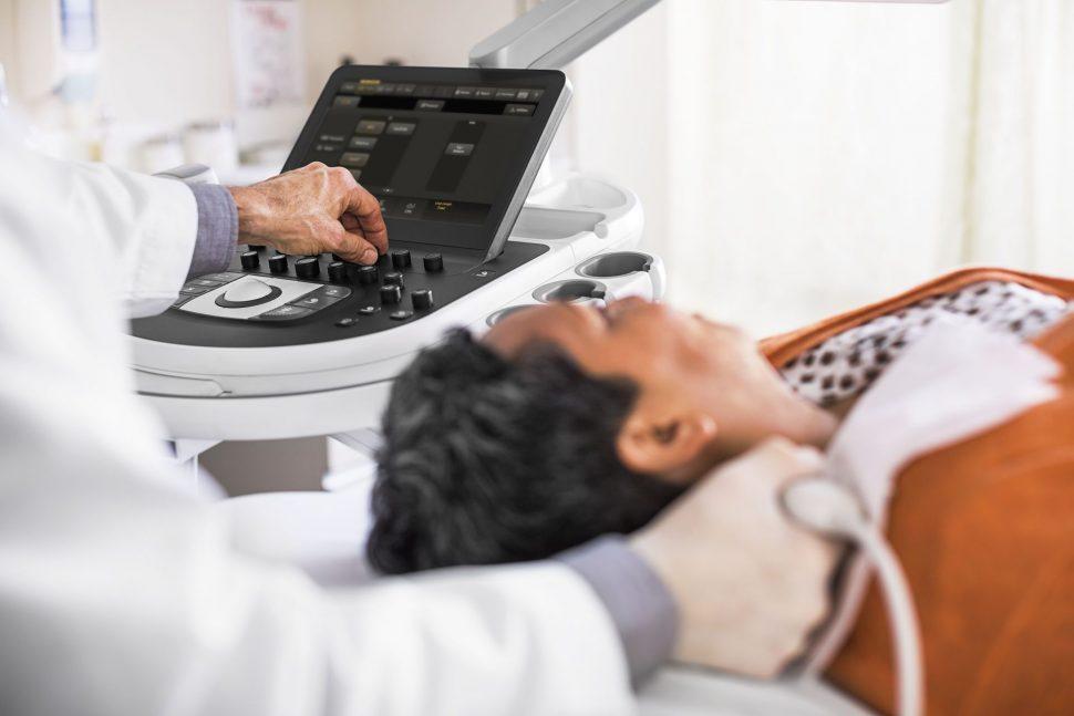 Kardiologia Philips Affiniti 70 Carotid Ultrasound 0039